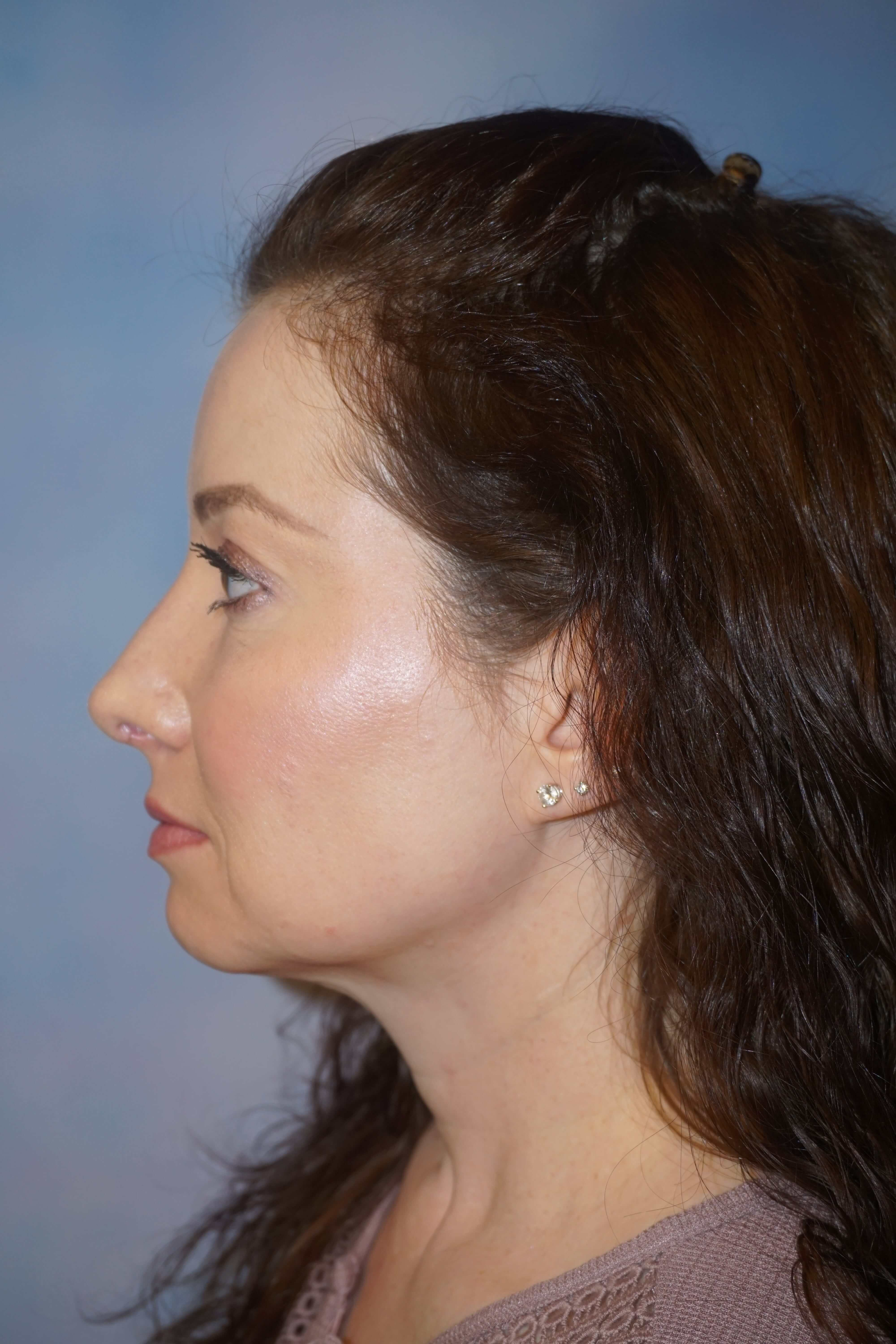 After Female Rhinoplasty Surgery