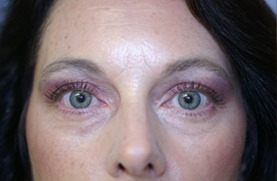 After Eyelid Rejuvenation