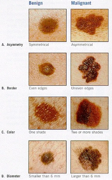 different types of mole